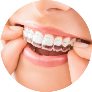 Patient with invisalign