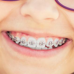 Patient with metal braces